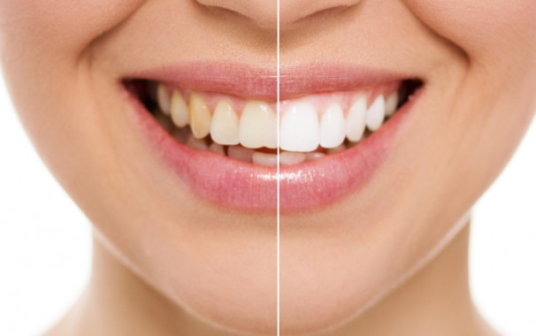 Pros And Cons Of Teeth Whitening Products